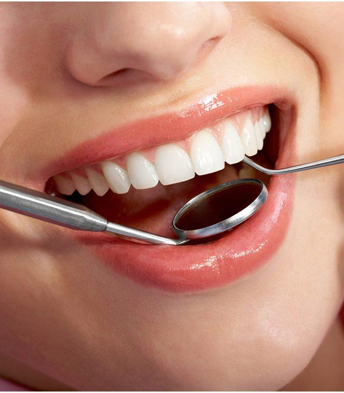 periodoncia en la Línea de la Concepción