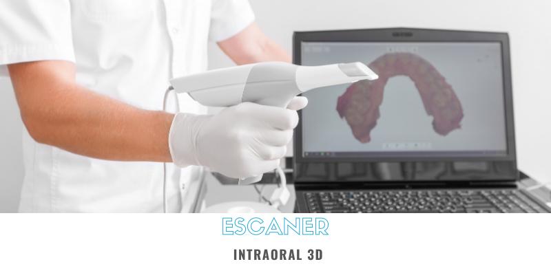 ¿Para qué sirve el escaner intraoral 3D?