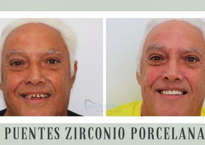 Puentes Zirconio Porcelana