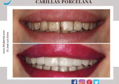 CARILLAS PORCELANA