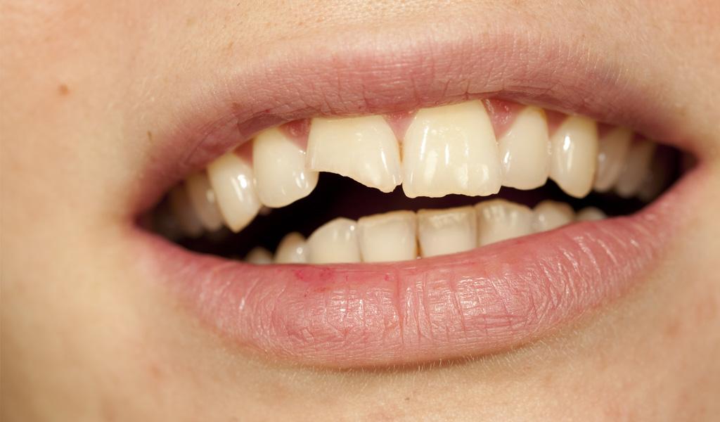 Urgencias dentales en La Línea de la Concepción