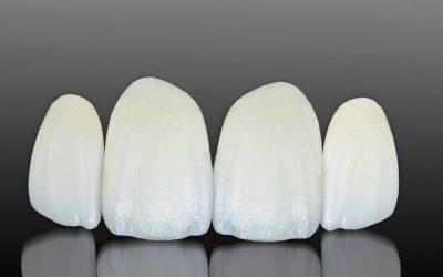 Carillas dentales sin rebajar el diente en La Línea de la Concepción – Cádiz