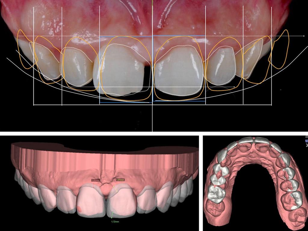 carillas dentales en La Línea de la Concepción