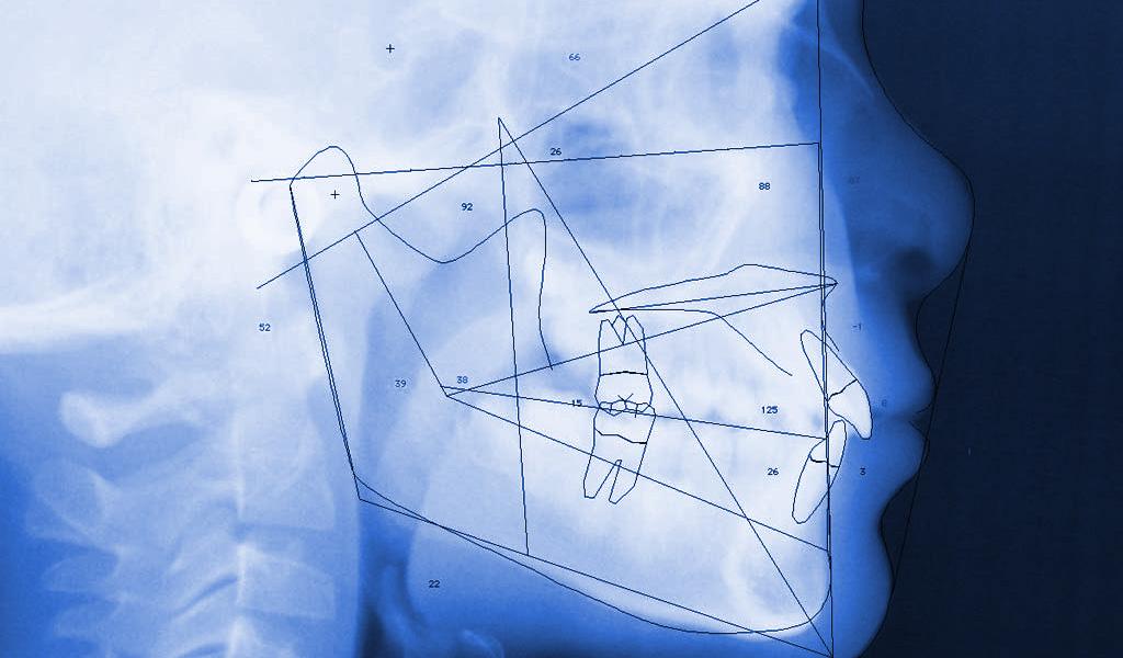 ortodoncia en la linea de la concepcion