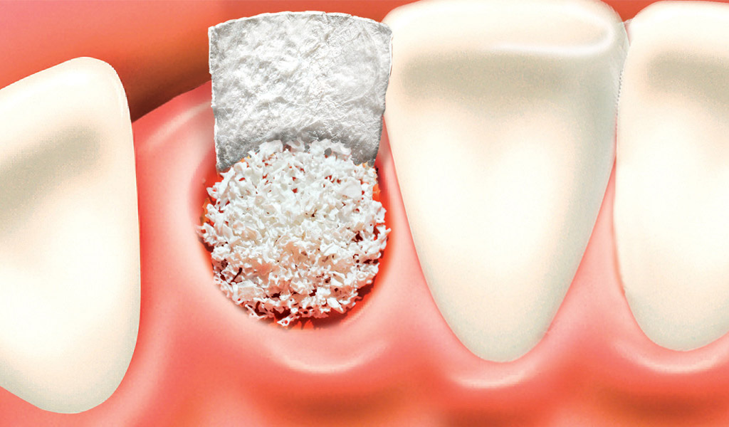 Implantes dentales en la Línea de la Concepción