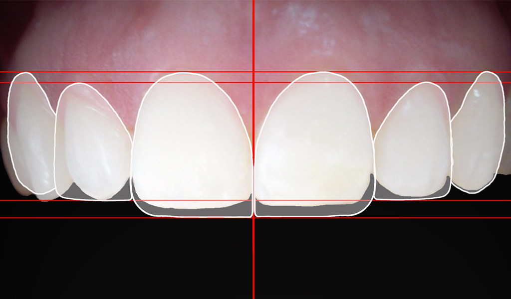 Estética dental en La Línea de la Concepción