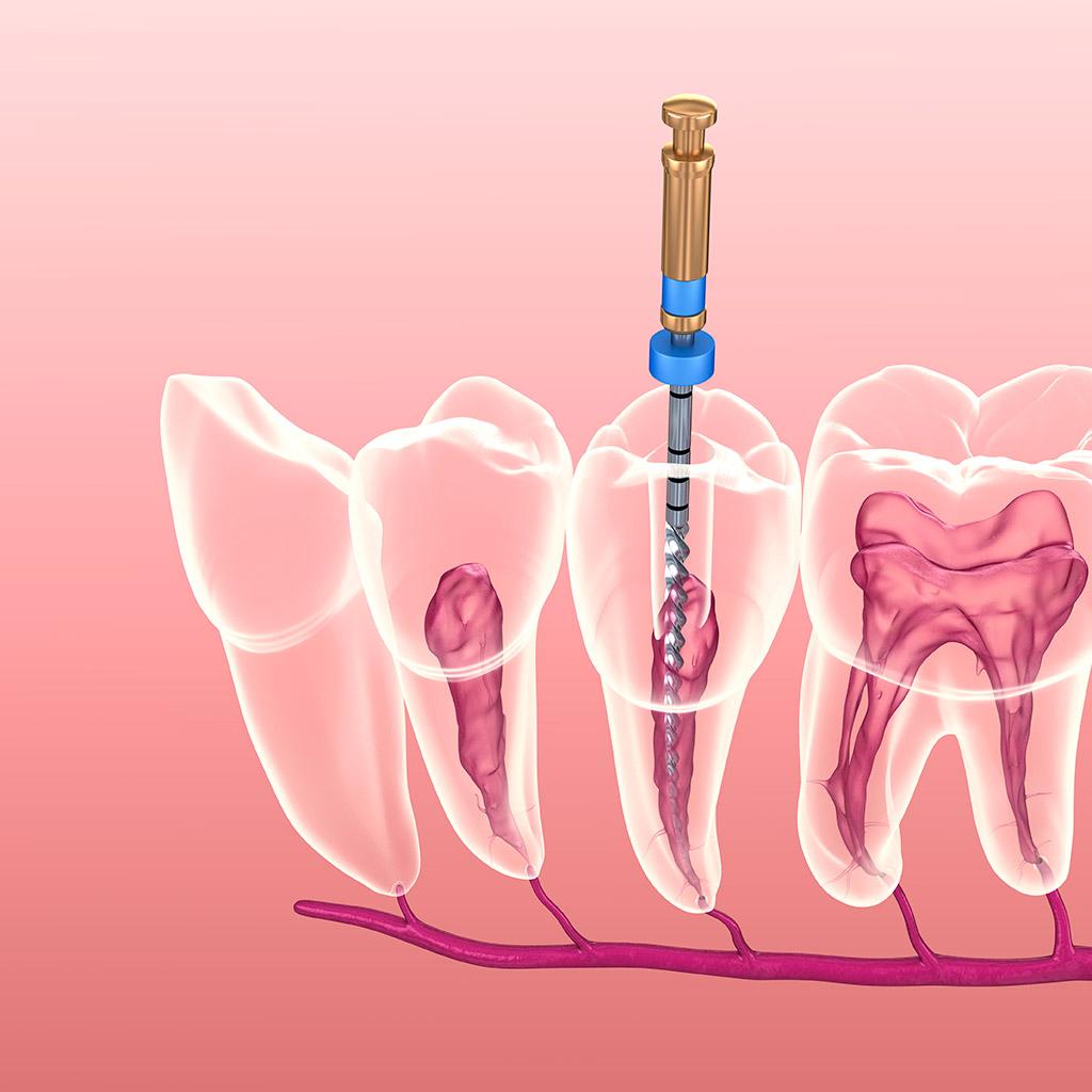 endodoncia en la Línea de la Concepción